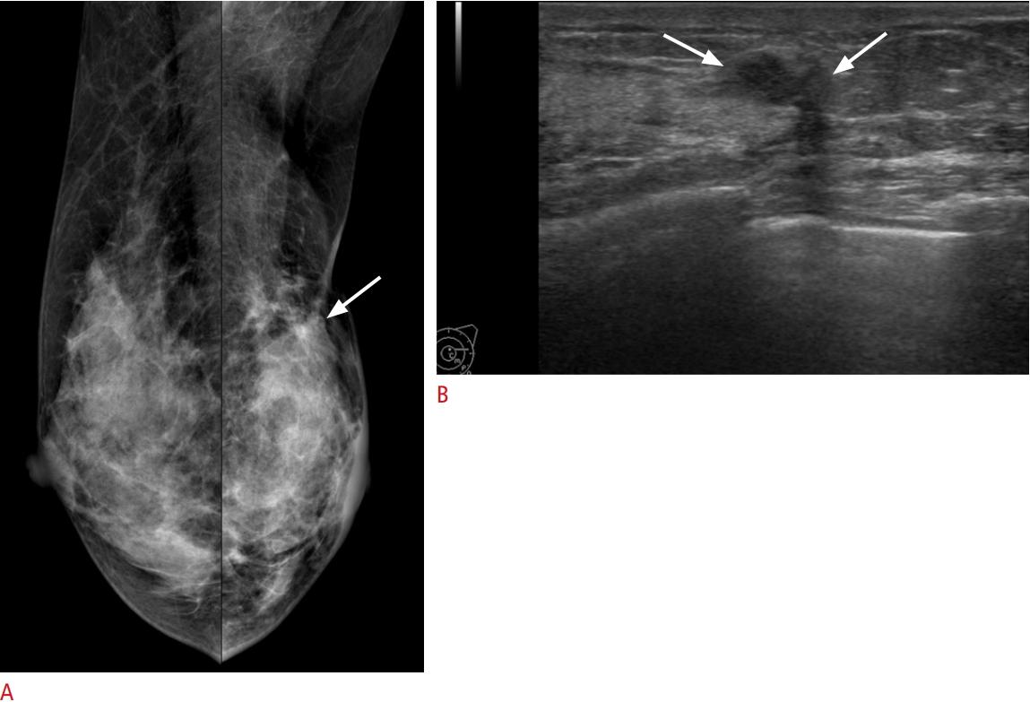 Usg Ultrasonography Ultrasonography 2288 5919 2288 5943